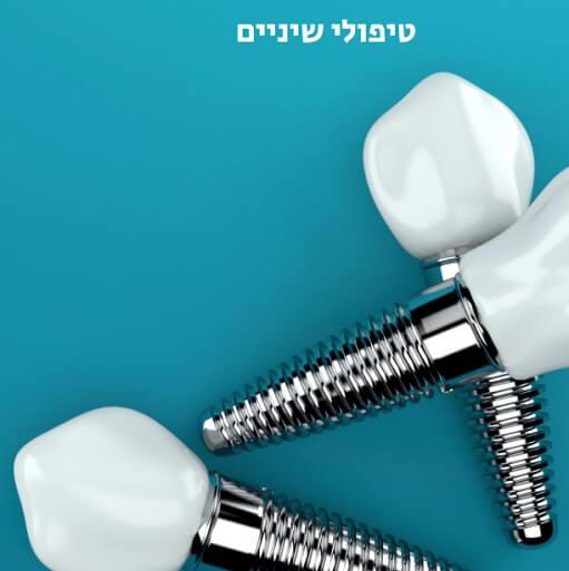 טיפולי שיניים בישראל מה חשוב לדעת